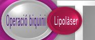 Operació Biquini: Lipolàser