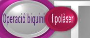 Operació biquini:oferta lipolàser